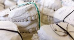 Korony porcelanowe – dla kogo? kiedy się zdecydować?