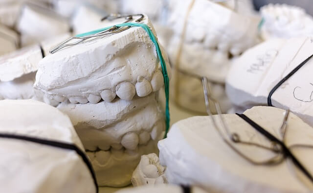 Wycisk zęba do korony porcelanowej